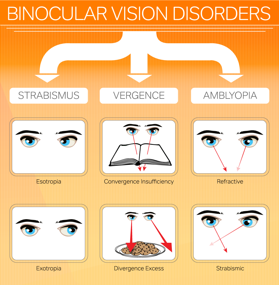 Binocular Vision Disorders Infographic