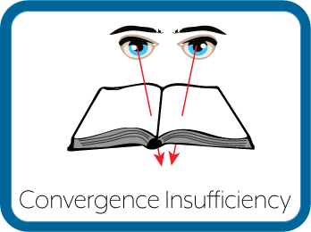 Convergence Insufficiency Eyes Graphic