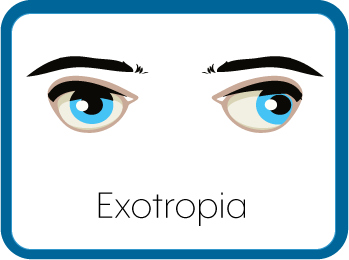 Exotropic Eyes Graphic