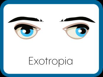 Exotropic Eyes Graphic