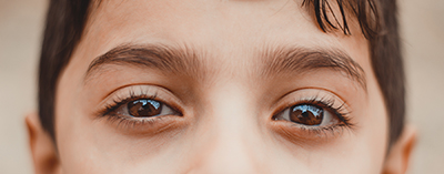 The medical term for lazy eye is Amblyopia. Did you know, in many cases you cannot