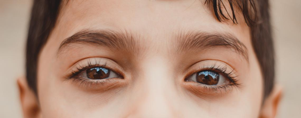 lazy eye, amblyopia, vision, eyes, binocular vision, children